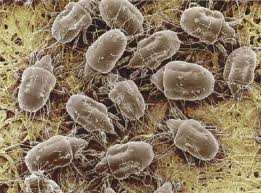 Dust Mites Image - Science for Kids All About Mites