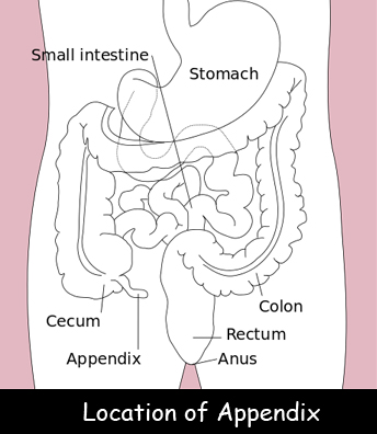 What is Appendicitis? Facts for Kids